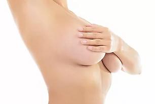 mamoplastia 3.PNG