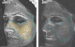 FotoFacial_RF_Skin_Rejuvenation02.jpg