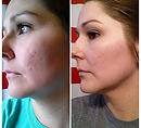 Microdermabrasion - Before and After.jpg