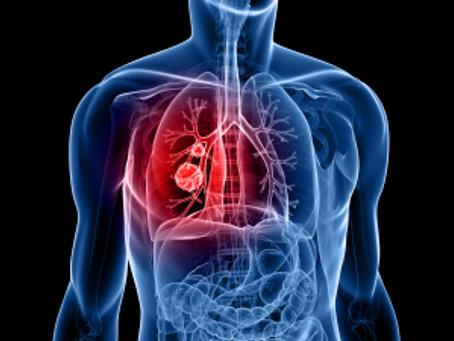 Лечение в Израиле рака легких