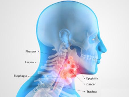 Лечение рака горла и гортани в Израиле