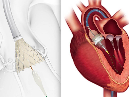 Вперше в світі: в Ізраїлі почали міняти все серцеві клапани без операції