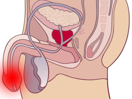 Лікування в Ізраїлі раку статевого члена