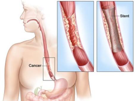 Лікування в Ізраїлі раку стравоходу