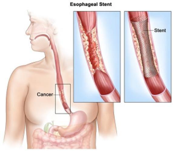 Лечение в Израиле рака пищевода