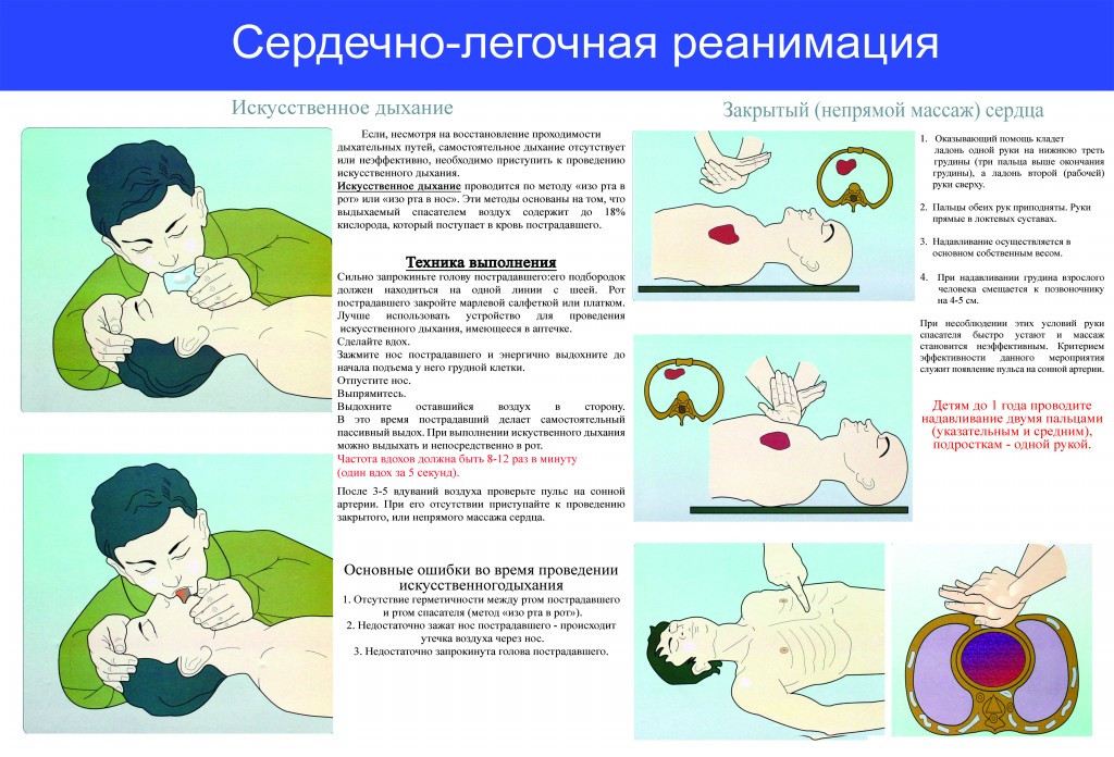 Правила выполнения искусственного дыхания реферат 3498