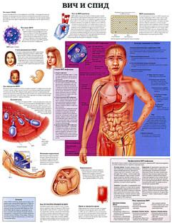 ВИЧ и СПИД (80х105)!.jpg
