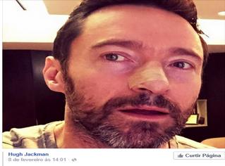 O famoso ator Hugh Jackman recentemente fez um alerta sobre os perigos do câncer de pele