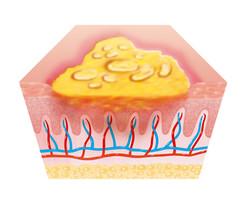 Fibrinous membranes