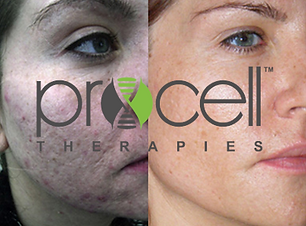 procell-before-after-1opt.png