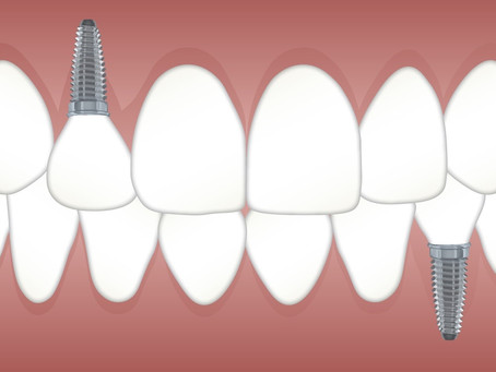 The Brilliance of Modern Dental Implants
