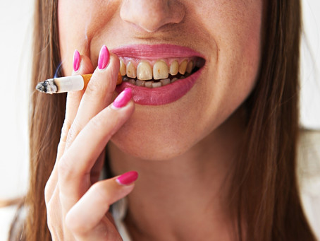 How Smoking Can Affect Your Teeth