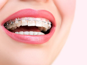 ortodontia2.jpg
