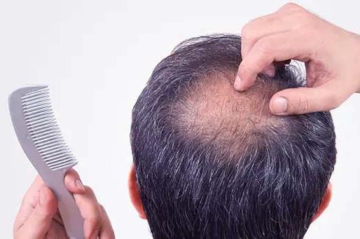 أهم 5 عوامل مؤثرة على تكلفة زراعة الشعر