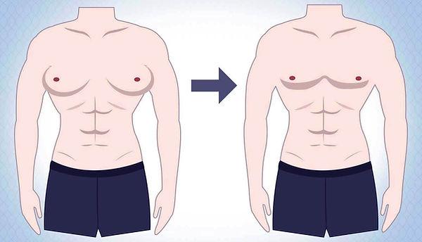 علاج تثدي الرجال.jpg