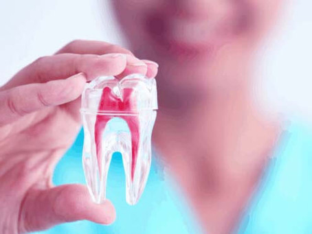 ما هو سعر حشو العصب في عيادات الأسنان المصرية؟