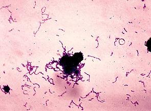 Streptococcus_mutans.jpg