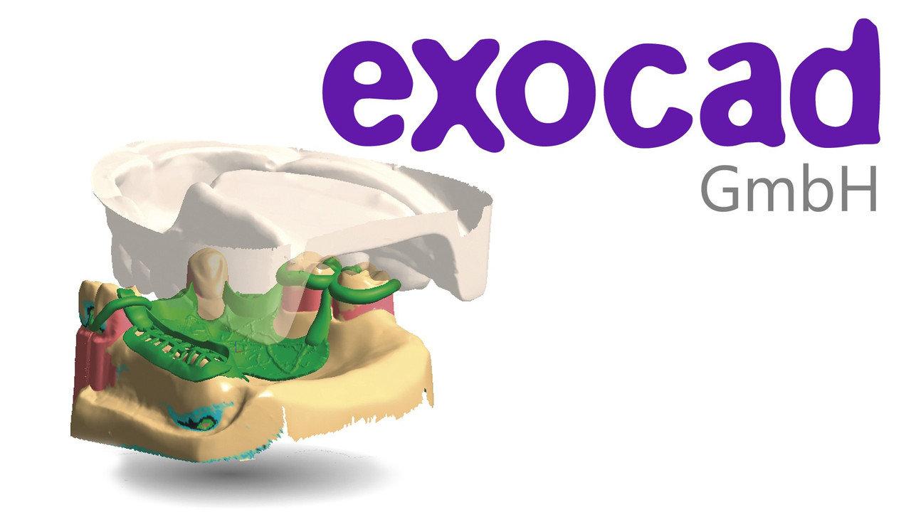 exocad DentalCAD