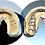 Thumbnail: FREEDOM HD 3D DENTAL SCANNER