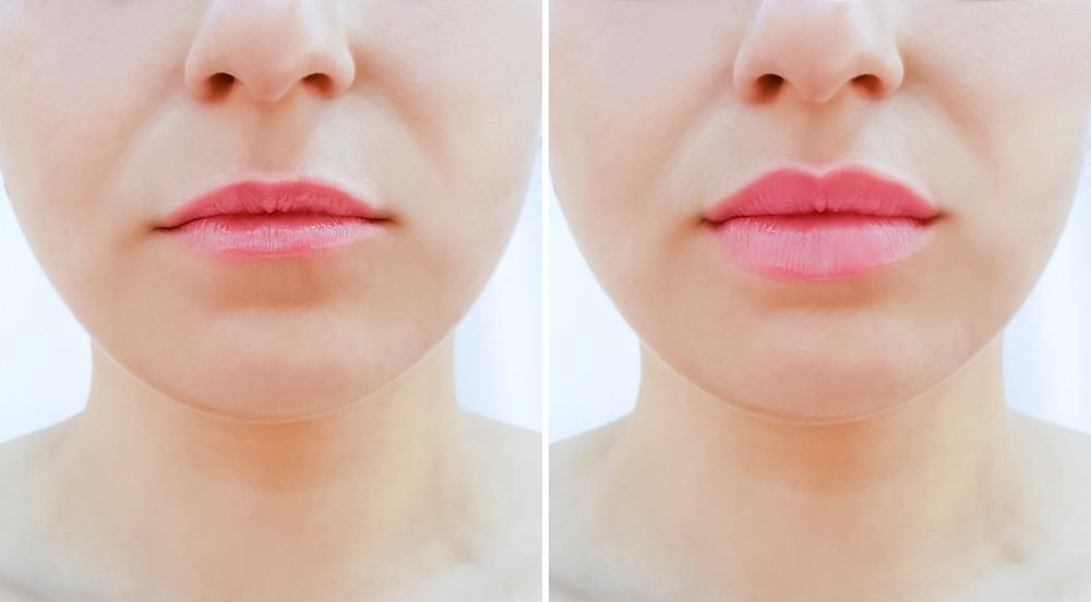 עיבוי ומילוי שפתיים
