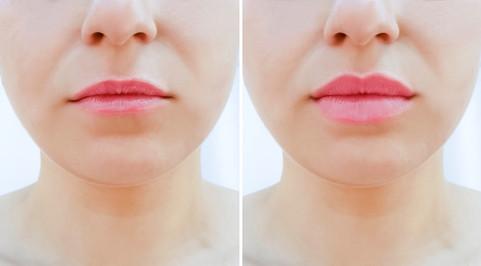 דוגמה: פיסול ועיצוב שפתיים