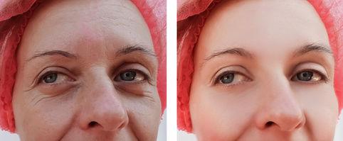 דוגמה: העלמת קמטים, הרמת לחיים ושיפור מרקם העור
