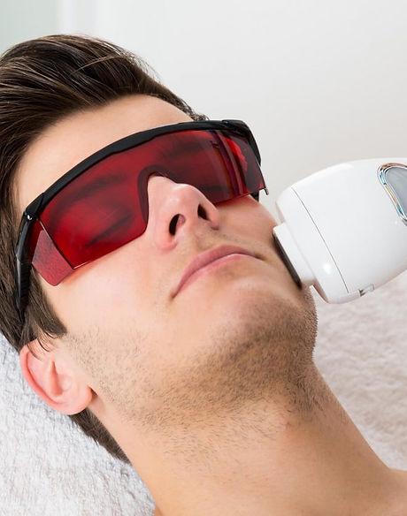 Depilação à Laser Facial