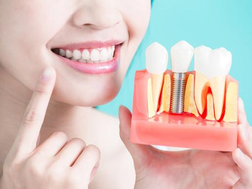 زراعة الأسنان ضرورة أم رفاهية؟