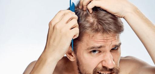 تساقط الشعر والصلع بين الأسباب والعلاج