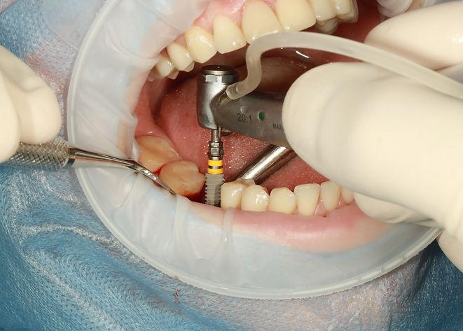 dental-3754769.jpg