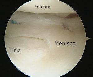 """Stesso ginocchio dell'immagine di fianco al termine della riparazione, eseguita con 2 punti """"All inside"""" visibile nella regione posteriore"""