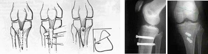 L'intervento corregge lo scorrimento e mette in scarico le cartilagini