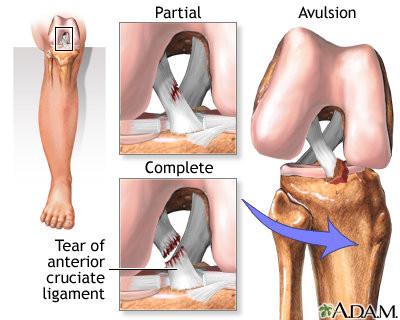 La distorsione è il più frequente meccanismo di lesione