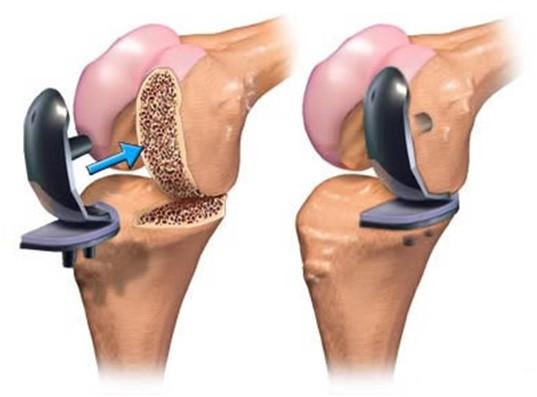 L'efficacia maggiore si ottiene con la chirurgia robotica