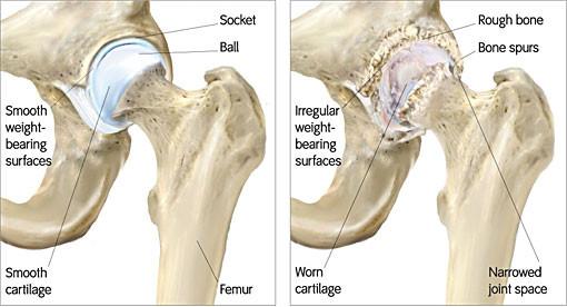 Caratteristiche principali sono superfici irregolari, ridotte e formazione di osteofiti