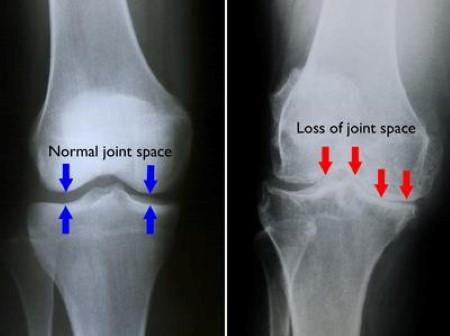 La riduzione dello spazio articolare si associa a deformità (valgismo o varismo)