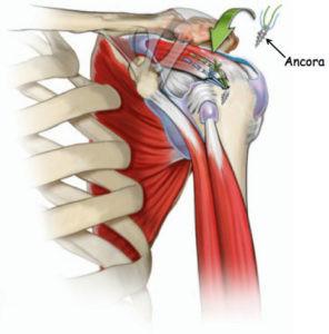 L'intervento viene comunemente eseguito in artroscopia e dura in media 30 minunti