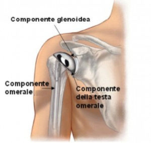 Il movimento della protesi anatomica è dato dalla cuffia dei rotatori