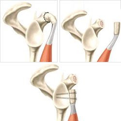 """La coracoide viene trasposta per sfruttare l'effetto """"amaca"""" del tendine congiunto e aumentare superficie ossea"""