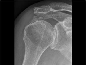 La radiografia è esame indispensabile