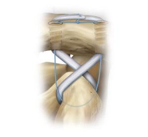 La stabilizzazione avviene tra clavicola e coracoide
