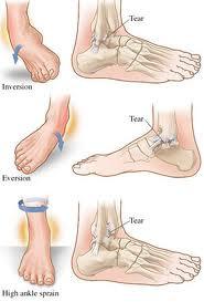 La lesione più frequente riguarda il legamento peroneo astralgico anteriore