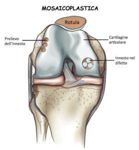Permette la cura simultanea di cartilagine e osso