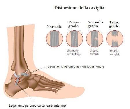 La chirurgia è utile nei casi più gravi e che provano instabilità