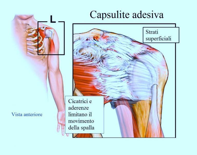 Cicatrici e aderenze limitano il movimento della spalla