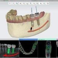 progettazione-digitale-300x188-300x188-6