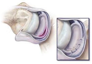 Il cercine è fissato con ancore in posizione anatomica e la capsula viene ritensionata