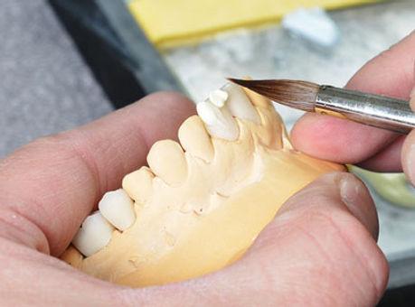 Protese_dentario_02.jpg