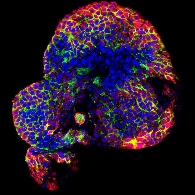 Liver organoid.tif