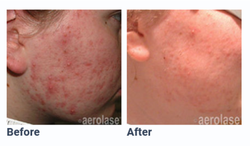 Aerolase Before and After